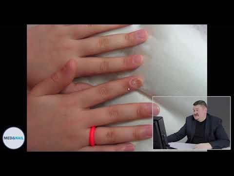 Die Mittel für die Behandlung gribka auf den Nägeln der Beine