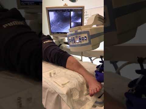 Cu durere în articulația genunchiului