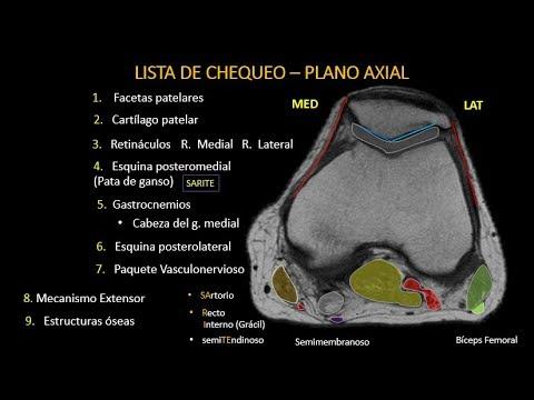 ¿Por qué un dolor en el cuello después de la laparoscopia