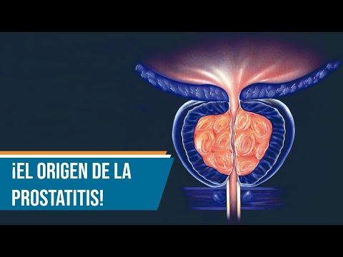 Komplex a prosztatitis kezelésére