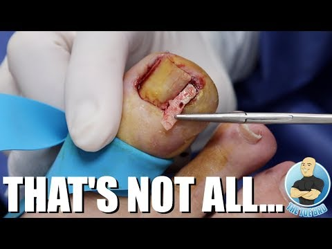 A SUPER SERIOUS INFECTED INGROWN TOENAIL