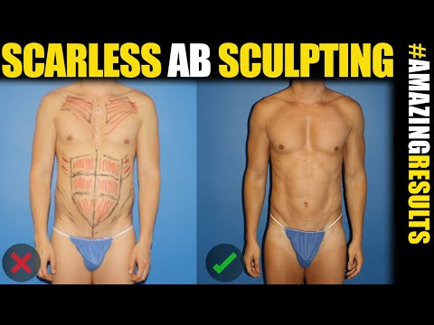 Scarless Ab Sculpting - Male Plastic Surgery New York and LA