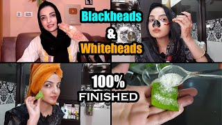 Remove Blackhead Permanently 100% & Get Rid Of Whiteheads With Homemade Tips