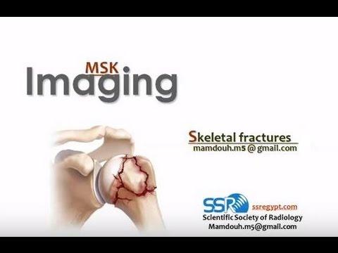 Artroza subacromială a articulației umărului
