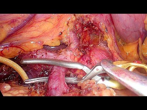 Laparoskopowa dystalna pankreatektomia z powodu dużego lito-pseudobrodawkowatego nowotworu trzustki (SPN) - procedura w pełnej długości
