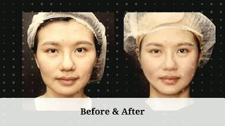 Non-Surgical Thread Lift to get rid of wrinkles and fine lines around nasolabial folds on her face
