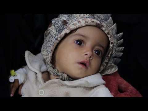 ريبورتاج الجمعية اليمنية لمرضى الثلاسيميا والدم الوراثي
