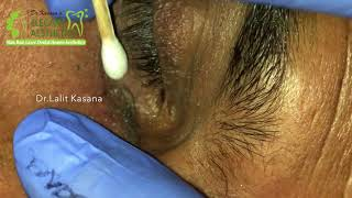 big deep blackheads removal by dr lalit kasana - TH-Clip