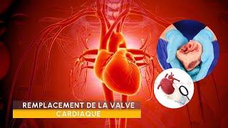 Video Remplacement des Valves Cardiaques