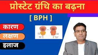 Bph (in hindi)//bph symptoms//benign prostatic hypertrophy//bph treatment (पूरी जानकारी हिंदी में..)