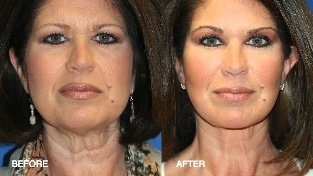 Videos Carmel Valley Facial Plastic Surgery