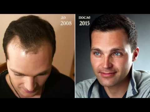 Метод FUE в пересадке волос. Real Trans Hair.