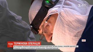 В Киеве мужчине пришили четыре отрезанных циркуляркой пальца