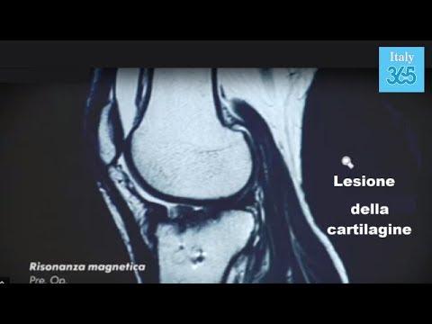 Quanta è la risonanza magnetica della colonna vertebrale e della colonna vertebrale cervicale