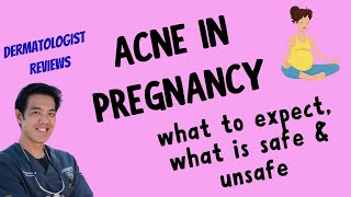ACNE DURING PREGNANCY | How to SAFELY treat
