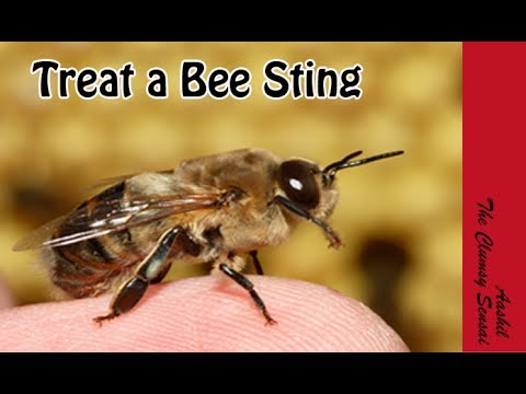 Video How to Treat a Bee Sting