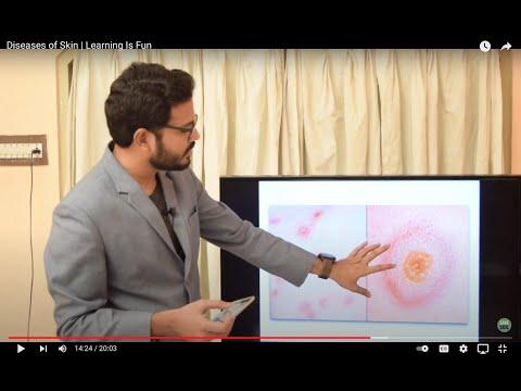 Que es virus del papiloma humano sintomas