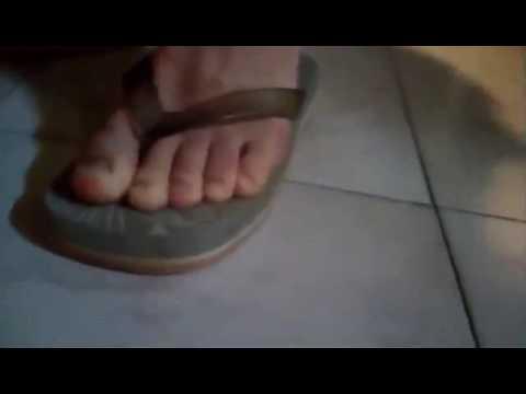 Il cono su un dito del piede su un mignolo