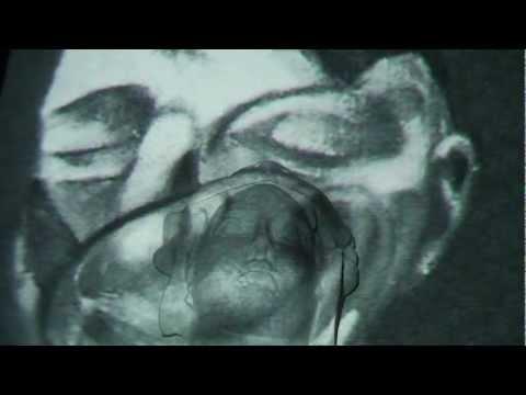 Empfängnisverhütend mit warikosom und dem Myom