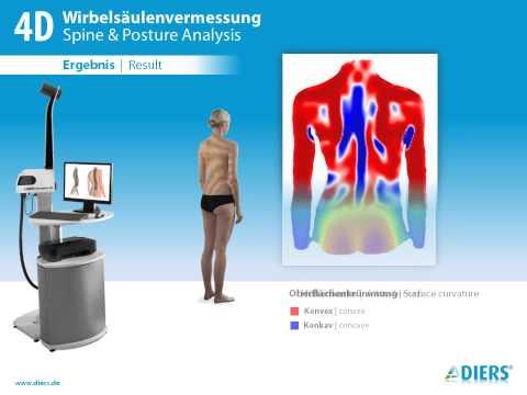 Osteochondrose analgetischen und entzündungshemmende