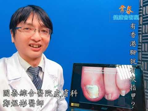 有香港腳就有灰指甲?