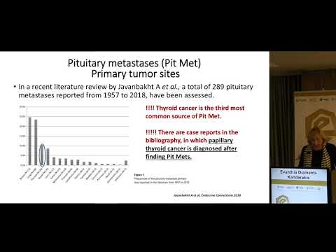 Evanthia Diamanti-Kandarakis - Pituitary metastasis: a rare condition