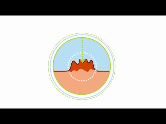 Видео Папиловир