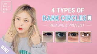 How to Remove Dark Circles Under Eyes In The Most Effective Way! | Teen Beauty Bible