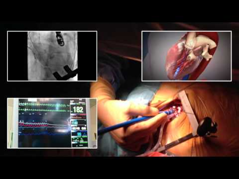 Przezcewnikowe wszczepienie zastawki aortalnej TAVI.