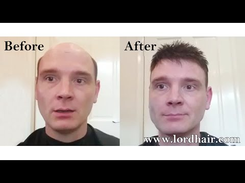 Hair Replacement Before & After