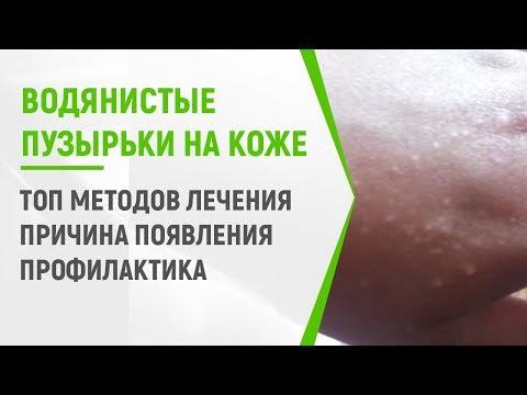Водянистые пузырьки на коже: ТОП методов лечения