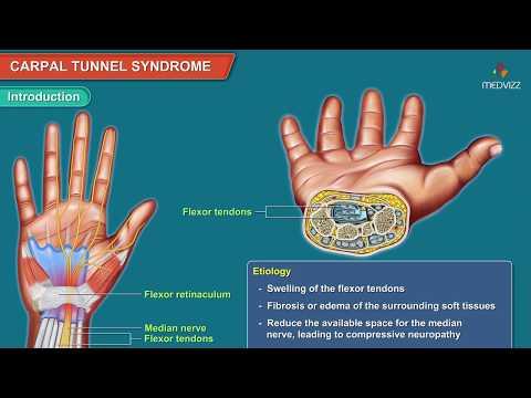 Artrita reumatoidă a durerii în articulația șoldului