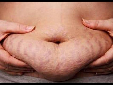 Atas obat terbaik untuk menurunkan berat badan