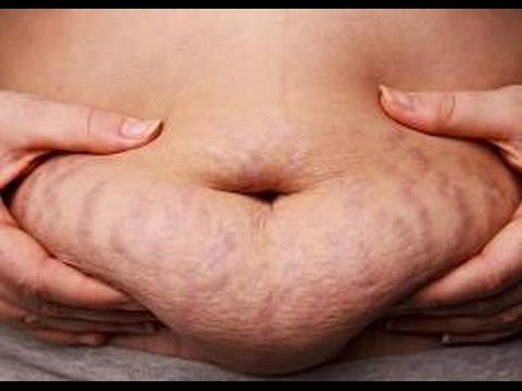 Pulsa saat berjalan untuk menurunkan berat badan