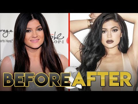 KYLIE JENNER | Before & After | Transformation ( Lips, Plastic Surgery and Workout )