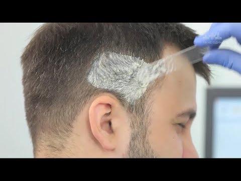 Witaminy wzmocnić cebulki włosów