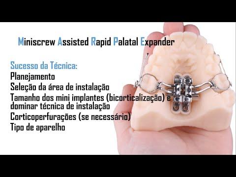 Deteriorarea articulațiilor cu glanda tiroidă