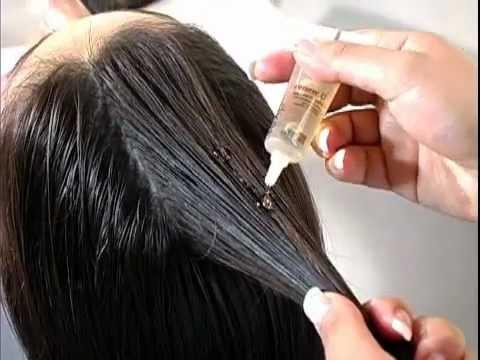 DHT wypadanie włosów jest normalne