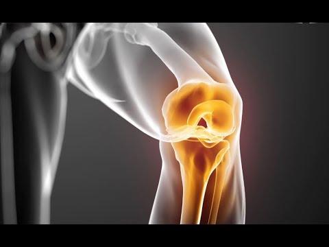Телеклиника / Причины артроза коленного сустава