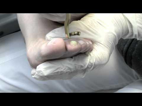 Die Salzbäder für die Behandlung gribka der Nägel
