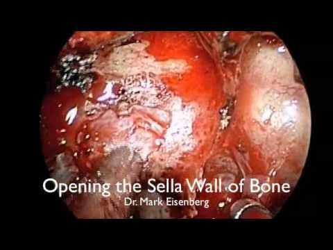 Endoscopic Removal of Pituitary Macroadenoma