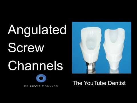 *New* Dental Implants - Angulated Screw Channels