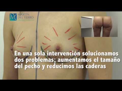 La reducción del pecho krasnodar la operación