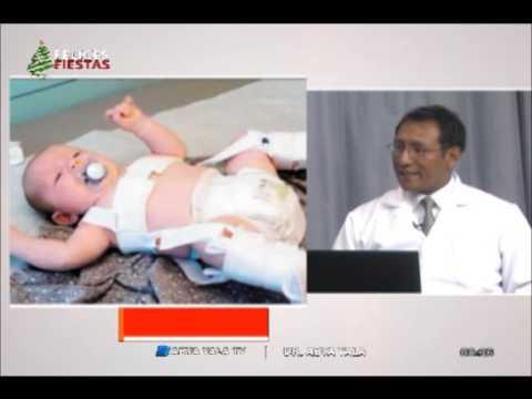 Cuello corto en bebés tratamiento foto