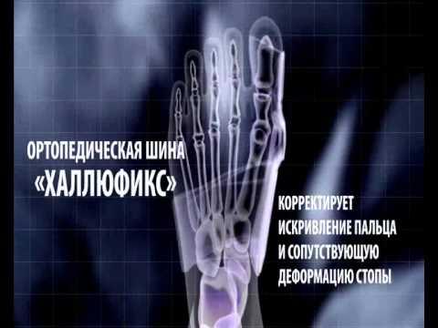 Leczenie deformacji kości stopy