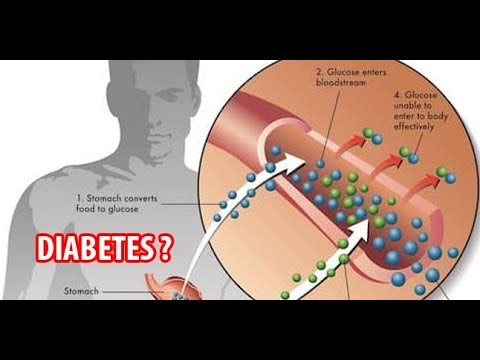 Diabetes-Medikamente Essig