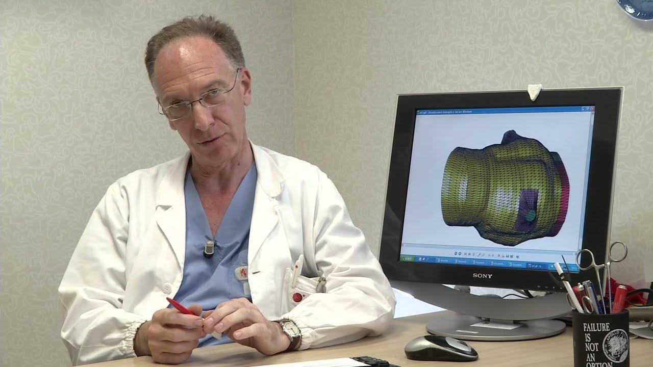 Intervista Prof. Gianluca Polvani, Responsabile UO Cardiochirurgia 2 del Monzino - 2