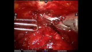 Ricostruzione Anteriore dei Legamenti Pubo-Prostatici