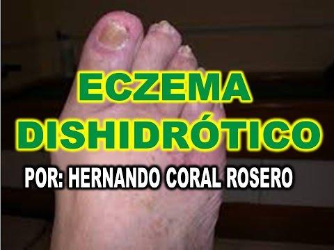 Miramistin a la psoriasis las revocaciones
