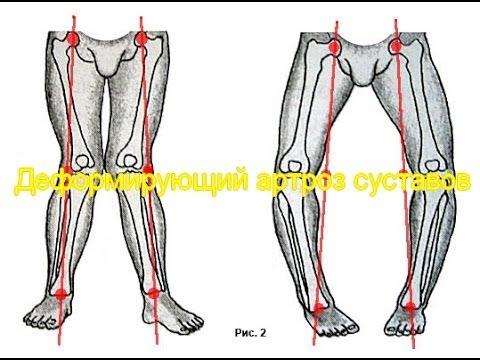 Узи коленного сустав у детей